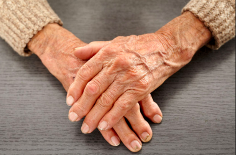 Vitamin B12 benefits include reducing dermatitis