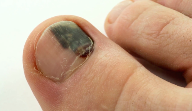 Subungual Hematoma: How to Fix Your Nail - A Paradise for