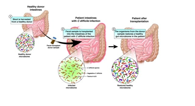 FMT can help C Diff Infections